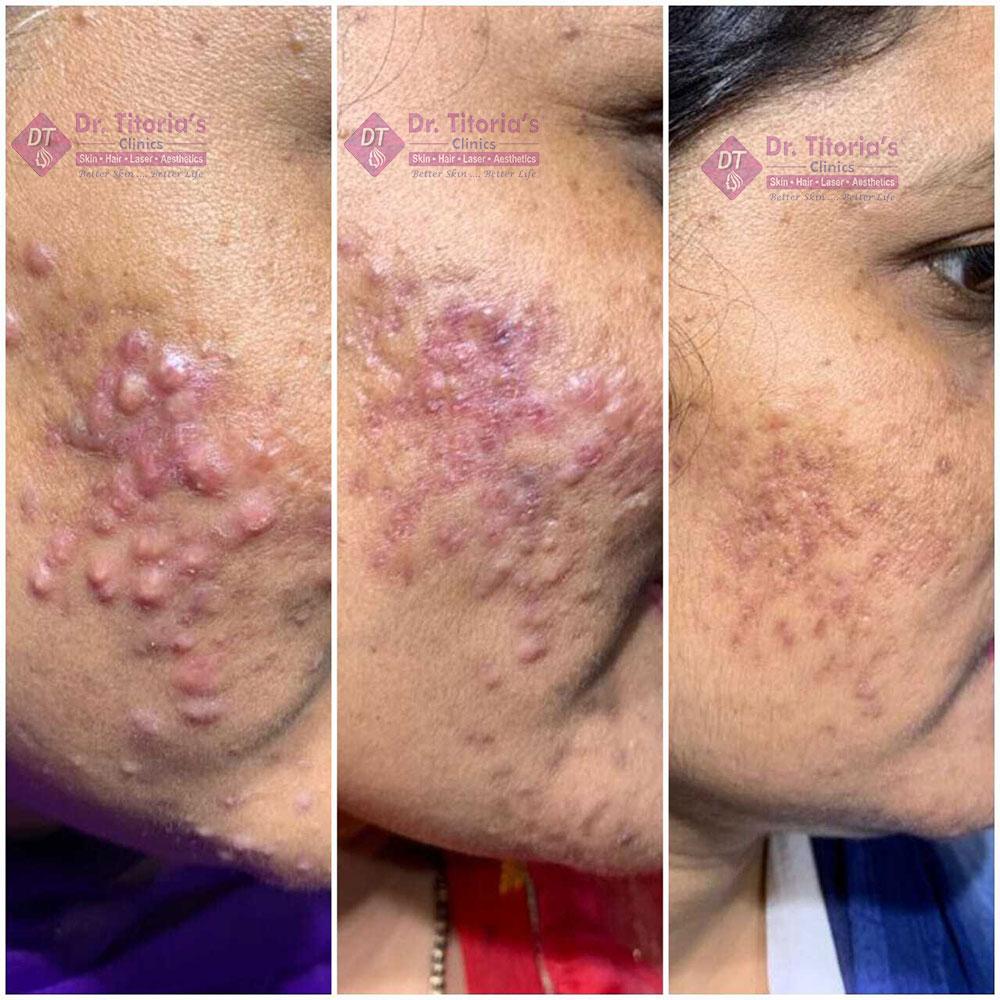 Peel Results in Acne