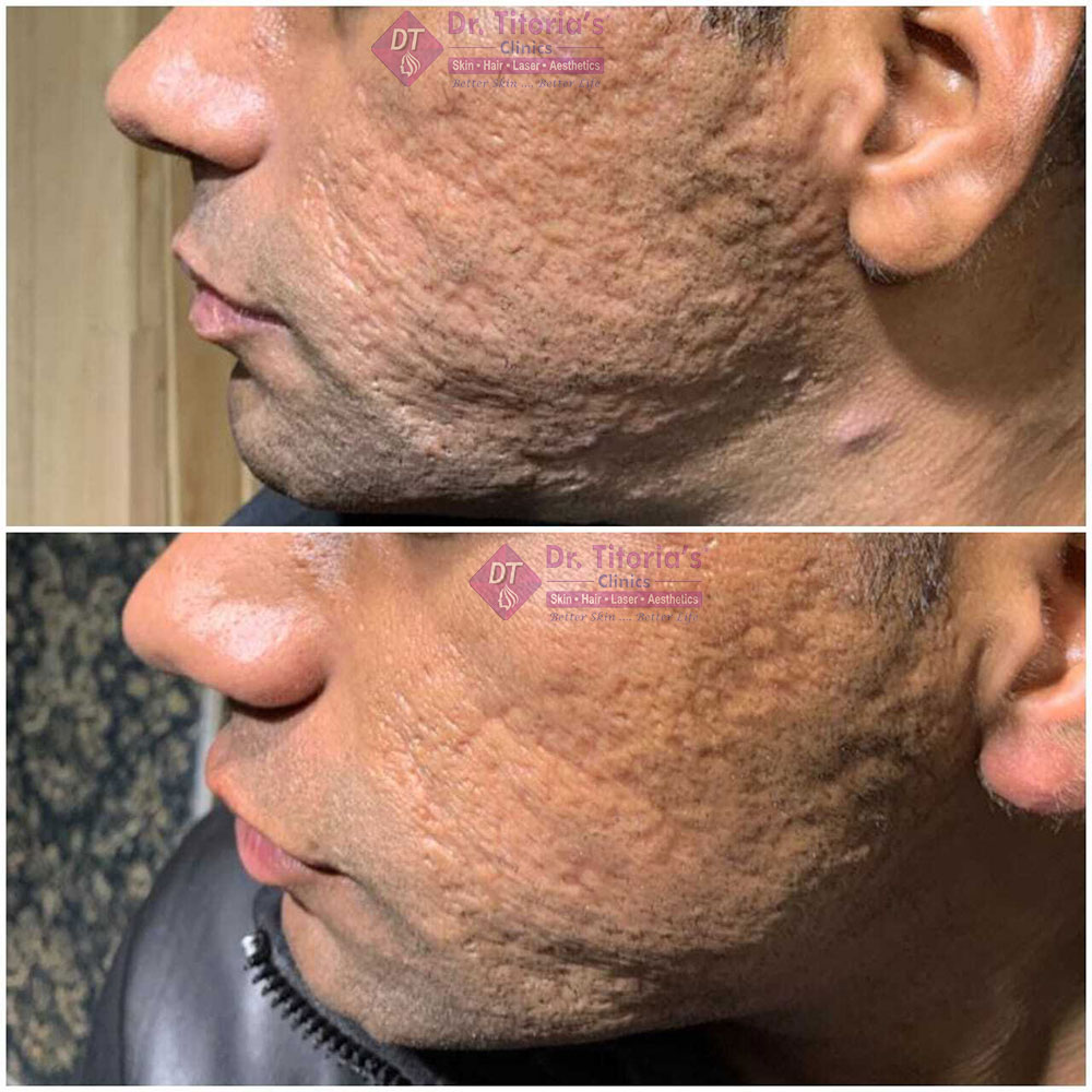 Acne Scars after MNRF