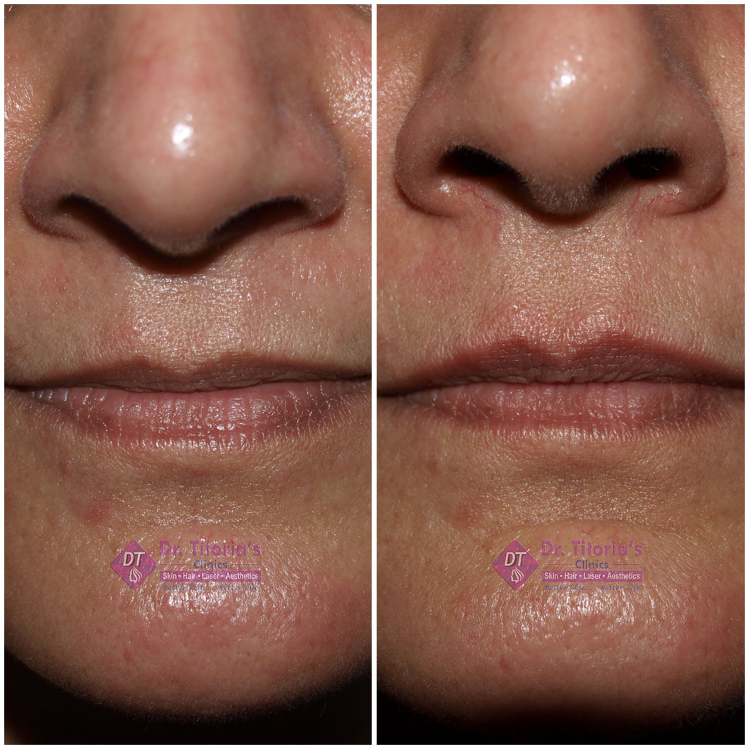 Naso Labial Filler