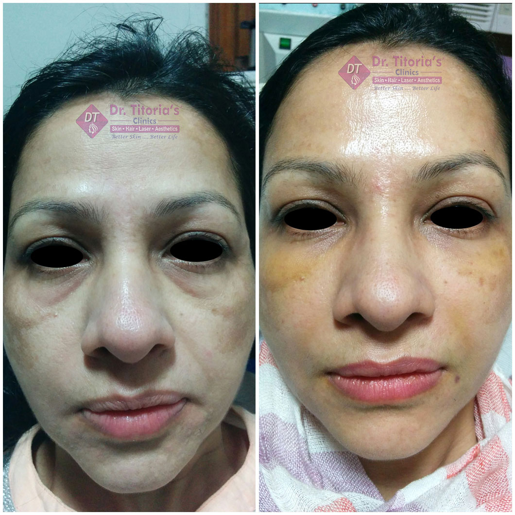 Cheek & Under Eyes Filler